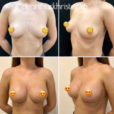 Имплантация груди 18