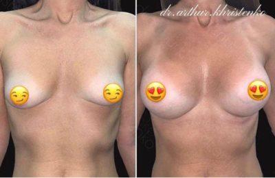 Пластика груди 38