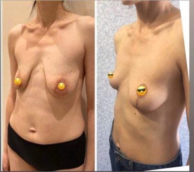 Коррекция груди после родов 5