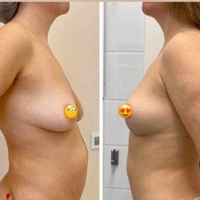 Коррекция груди после родов с превосходным результатом 7