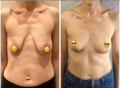 Коррекция груди после родов 6
