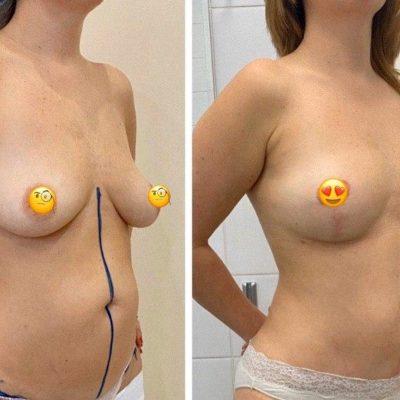 Коррекция груди после родов с превосходным результатом 8