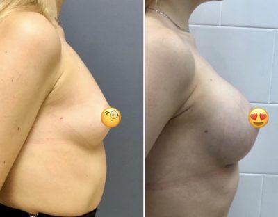 Имплантация груди 6