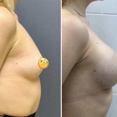 Имплантация груди с великолепным результатом 6