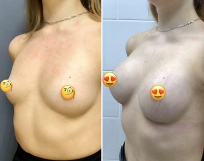 Имплантация груди 7