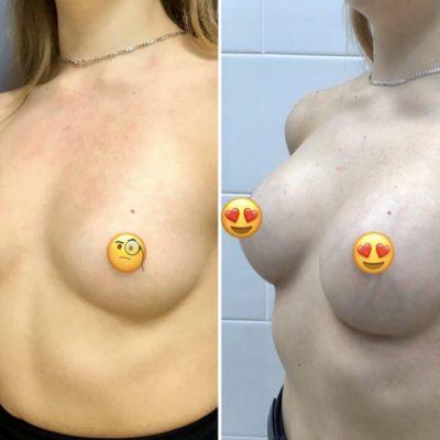 Имплантация груди с великолепным результатом 7