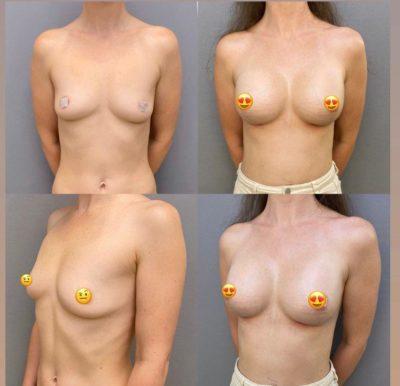 Увеличение груди 15