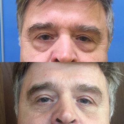 Липофилинг области глаз 6
