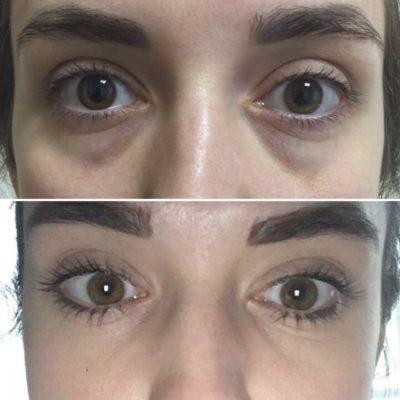 Липофилинг области глаз 13