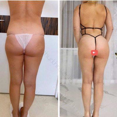 Круропластика: коррекция голеней 2