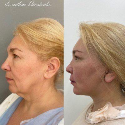 Безоперационное омоложение кожи лица и шеи 0