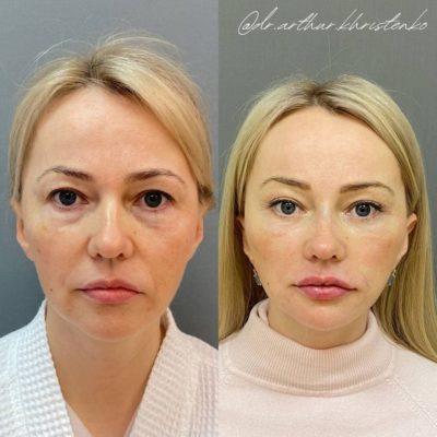 Безоперационное омоложение кожи лица и шеи 14
