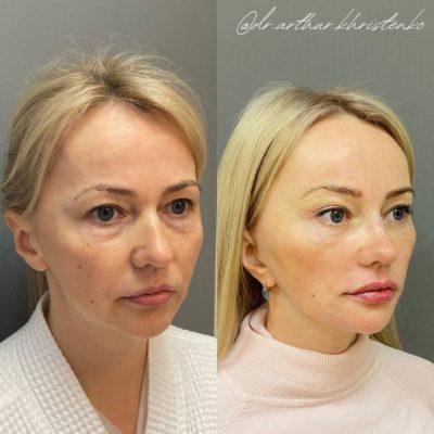 Безоперационное омоложение кожи лица и шеи 15