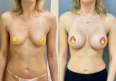 Пластика груди 4