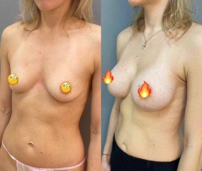 Пластика груди 1