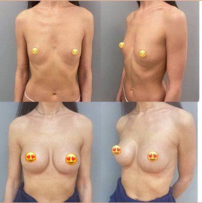 Пластика груди 2