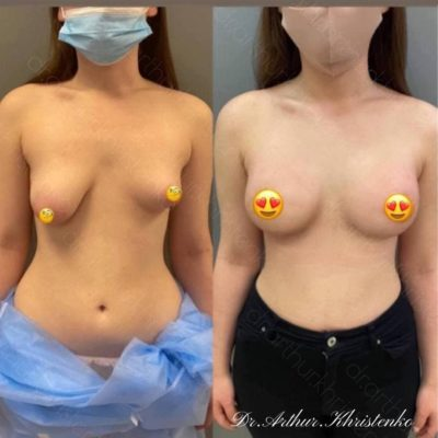Пластика груди 3