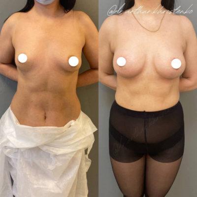 Увеличение груди 9