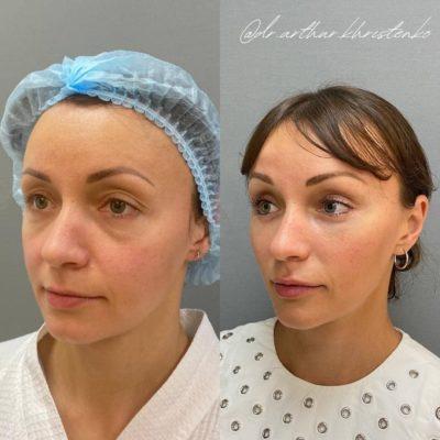 Эндоскопическая подтяжка лица 10