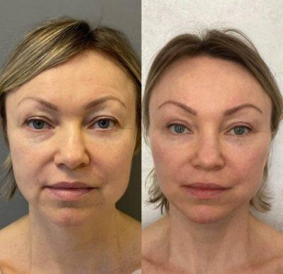 Безоперационное омоложение кожи лица и шеи 10