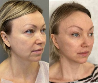 Безоперационное омоложение кожи лица и шеи 11