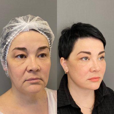 Безоперационное омоложение кожи лица и шеи 12