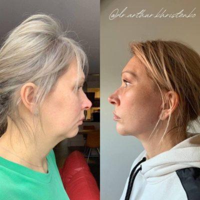 Безоперационное омоложение кожи лица и шеи 17