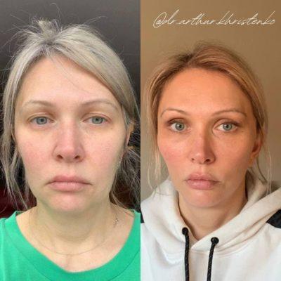 Безоперационное омоложение кожи лица и шеи 18