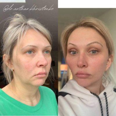 Безоперационное омоложение кожи лица и шеи 16
