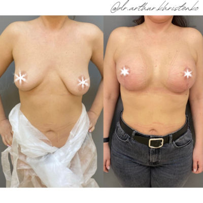 Пластика груди 27