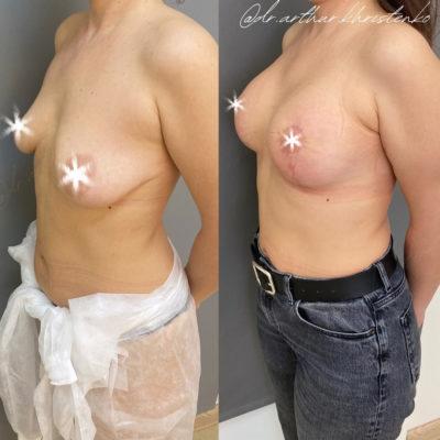 Пластика груди 26