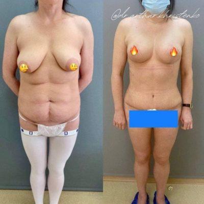 Липоабдоминопластика 24