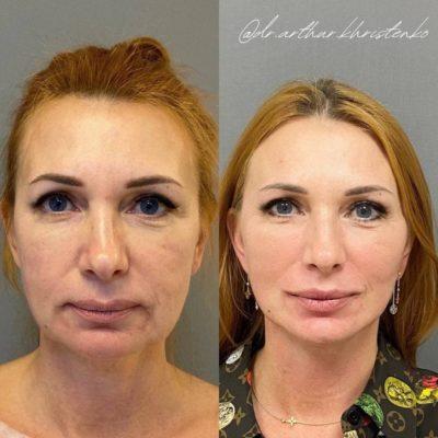 Безоперационное омоложение кожи лица и шеи 19