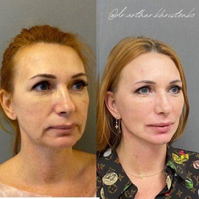 Безоперационное омоложение кожи лица и шеи 21