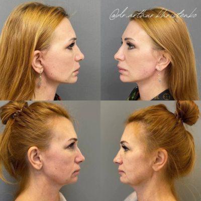 Безоперационное омоложение кожи лица и шеи 20