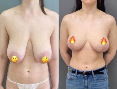 Пластика груди 29