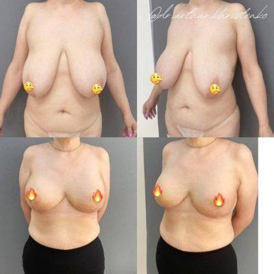 Пластика груди 30